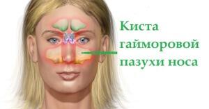 Часто киста носовой пазухи выявляется при диагностировании других заболеваний