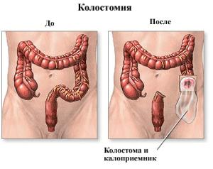 Установка колостомы применяется при различных патологических состояниях толтого кишечника