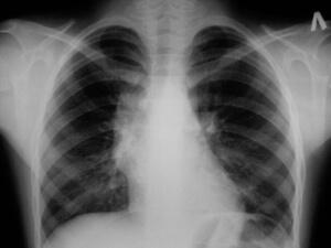 Для диагностики заболевания проводится рентгенография