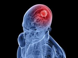 Симптомы височной эпилепсии: особенности недуга