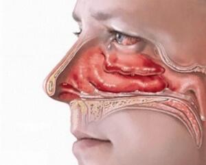 Вазотомия носовых раковин: показания и особенности процедуры