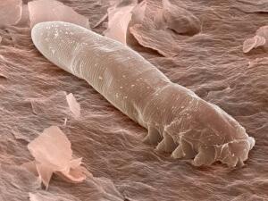 Заболевание вызывает паразитический организм демодекс