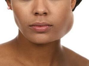 Флюс - воспаление надкостницы на верхней и нижней челюстях