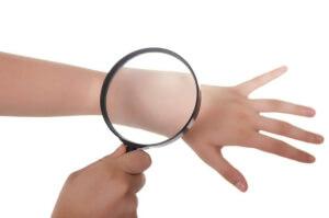 Сухость кожи может свидетельствовать о нарушениях в работе организма