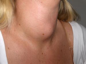 Появление образований в области шеи является одним из показаний к назначению УЗИ железы