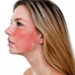 Как быстро снять покраснение на лице: эффективные способы