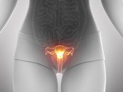 Дисплазия влагалища: особенности патологии органа