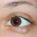 Лечение халязиона у детей: различные методики