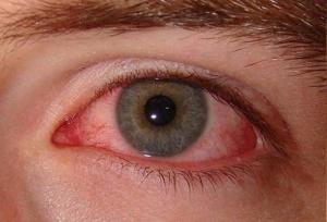 Заражение вирусом происходит при контакте с больным человеком