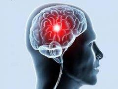 Ишемия мозга: симптомы недуга