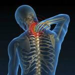 Что такое хондроз и как его лечить: особенности болезни и методы исцеления