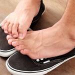 Потница на ногах: причины, симптомы, лечение