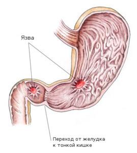 Хеликобактер пилори - патогенная бактерия, вызывающая язву желудка
