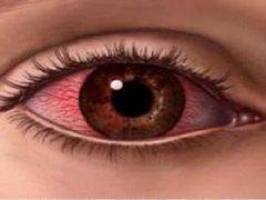Ожог роговицы глаза: причины, симптомы, лечение