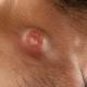 Как лечить воспаленные лимфоузлы на шее: причины патологии и методы лечения