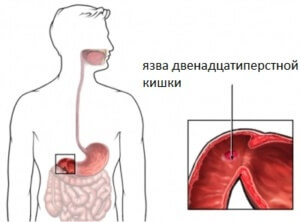 Язва двенадцатиперстной кишки - заболевание органов ЖКТ