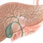 Как лечить холецистит народными средствами: эффективные методы терапии
