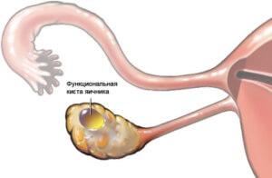 Киста яичника - распространенное женское заболевание