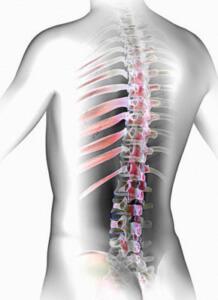 Симптомы спинального инсульта: признаки, провоцирующие факторы