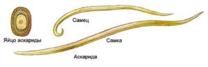 Аскаридоз - распространенное паразитарное заболевание у детей