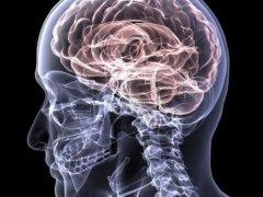Что полезно для сосудов головного мозга: основные препараты, показания, правила приема