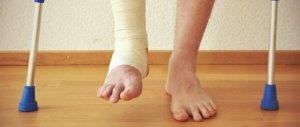 Накладывание гипса - главная составляющая лечения перелома