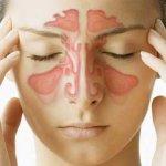 Гайморит без насморка: симптомы болезни и методы лечения