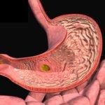 Обострение гастродуоденита: симптомы и лечение недуга