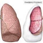 Неотложная помощь при пневмотораксе: об этом нужно знать