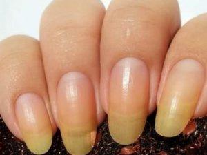 Желтые ногти - сигнал о наличии патологии