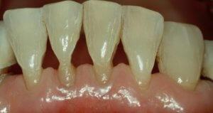 Оголение шейки зуба грозит потерей зуба