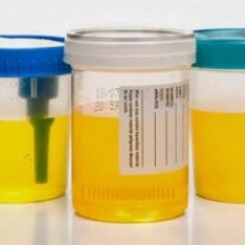 Желтая моча при беременности: патология или норма?