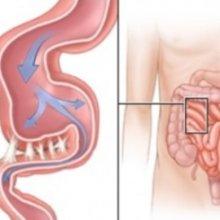 Что делать, если появились спайки в кишечнике после операции