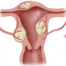 Почему появляется интрамуральный миоматозный узел?