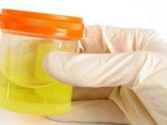Кишечная палочка в моче: симптомы и лечение патологии
