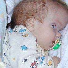 Отек мозга у новорожденного: причины, симптомы, последствия патологии