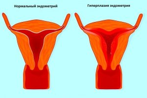 Гиперплазия эндометрия - серьезная патология женского репродуктивного органа