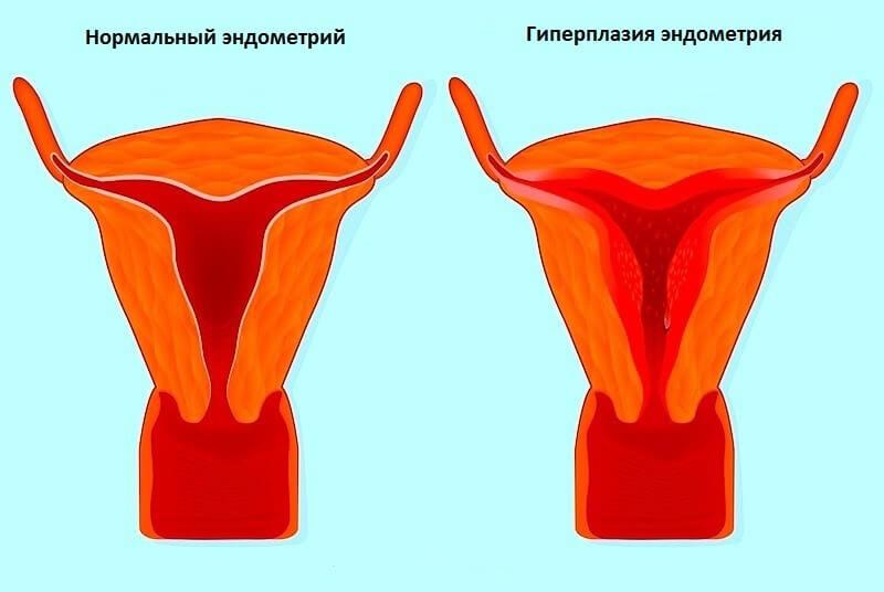 Гиперплазия эндометрия: эхопризнаки, диагностика и лечение
