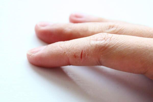 Почему на руках трескаются пальцы на руках возле ногтей