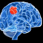 Кистовидная перестройка шишковидной железы: особенности патологии