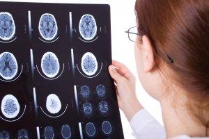 МРТ - эффекктивный метод диагностики заболевания