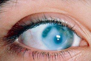 Помутнение роговицы - сербезная глазная патология