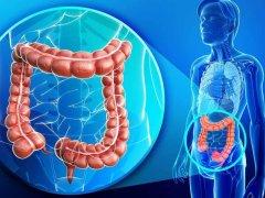 Эрозивный проктит: симптомы и лечение заболевания