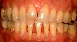 Пародонтит - распространенное заболевание ротовой полости