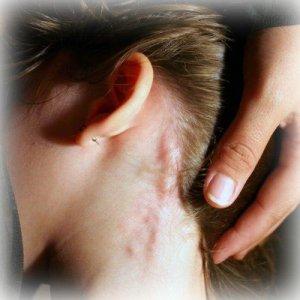 Основной симптом недуга - увеличение лимфоузлов