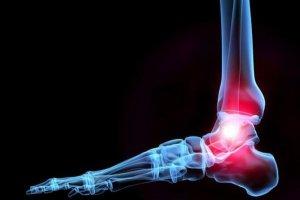 Эффективные таблетки для суставов и связок: перечень пепаратов