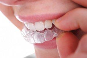 О народных способах отбеливания зубов нужно знать!