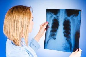 Основные симптомы туберкулеза легких на ранних стадиях