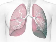 Фиброз корней легких: особенности патологии