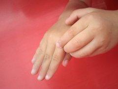 Коварная чесотка: чем лечить, чтобы избежать рецидивов и осложнений